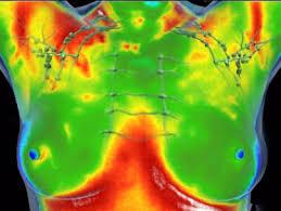 thermografisch borstonderzoek